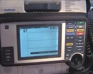 Mentőautóban használt EKG monitor