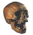 Porsmose-ban (Dánia) megtalált 35 éves férfi koponyája, kb. i.e. 3000-ből