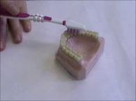A fogkefe használata II.