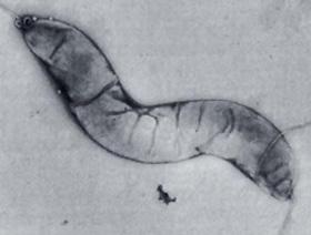 Csavart alakú baktériumsejtek