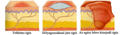 A bőr rétegeinek sérülése égéskor