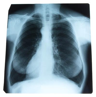 Röntgenkép a tüdőről