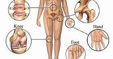 2000 - 2010: A csont és ízület évtizede