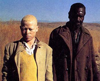 Az albinizmus