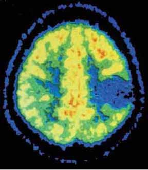PET felvétel az agyról